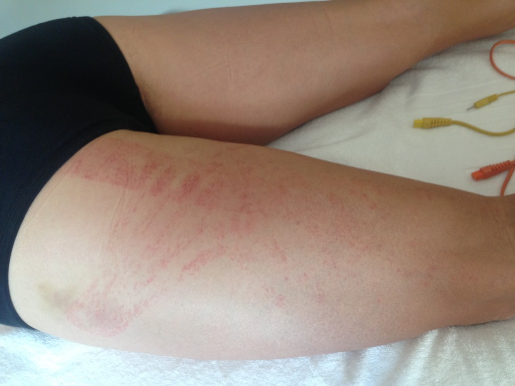 Skin irritation due to a Kinesio Taping application: be aware of the precautions