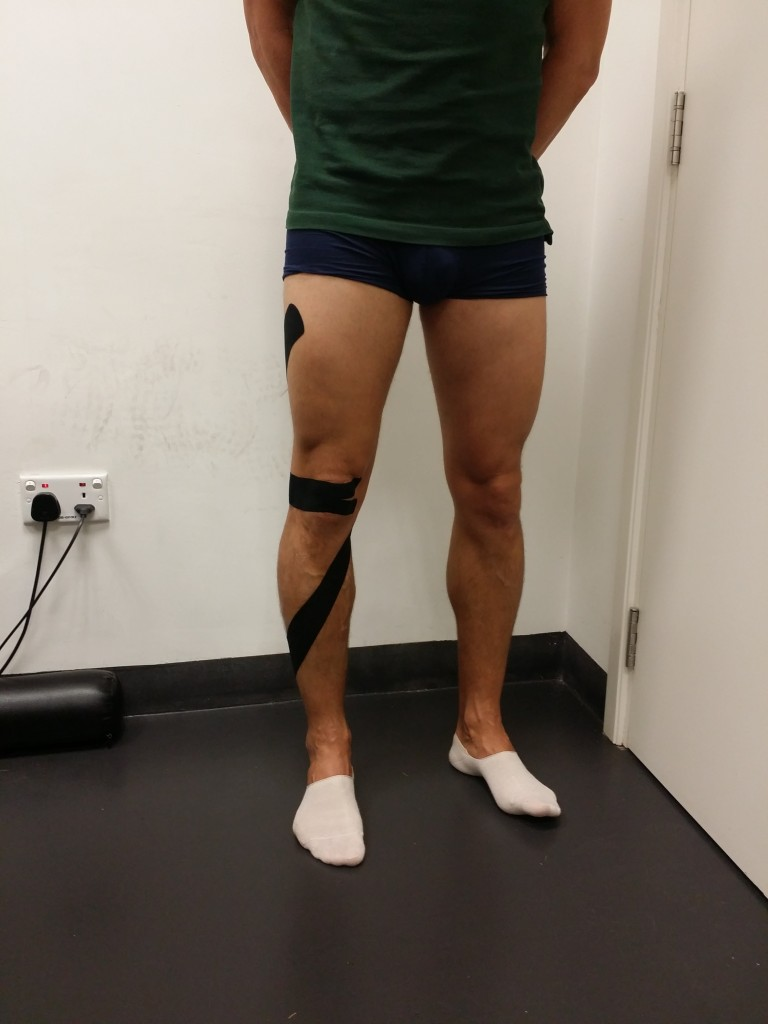 Kinesio Taping application used for PFS management: patellar mechanical correction application combined with a tibial mechanical correction