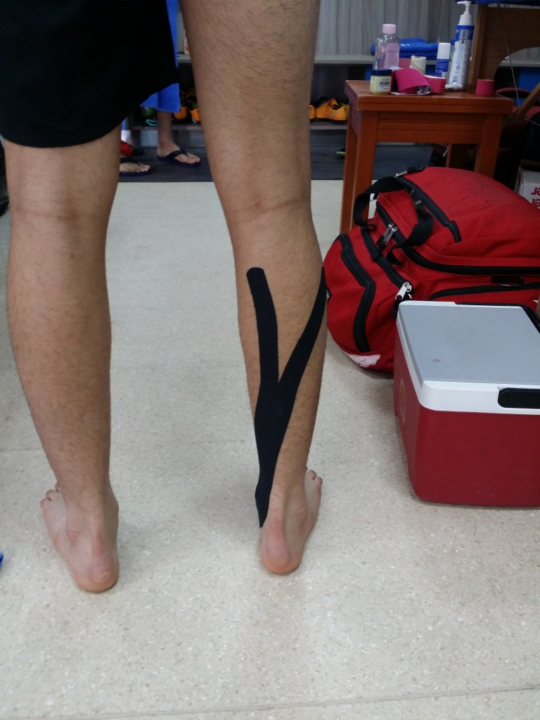 Tibialis posterior facilitation application: an example of the application