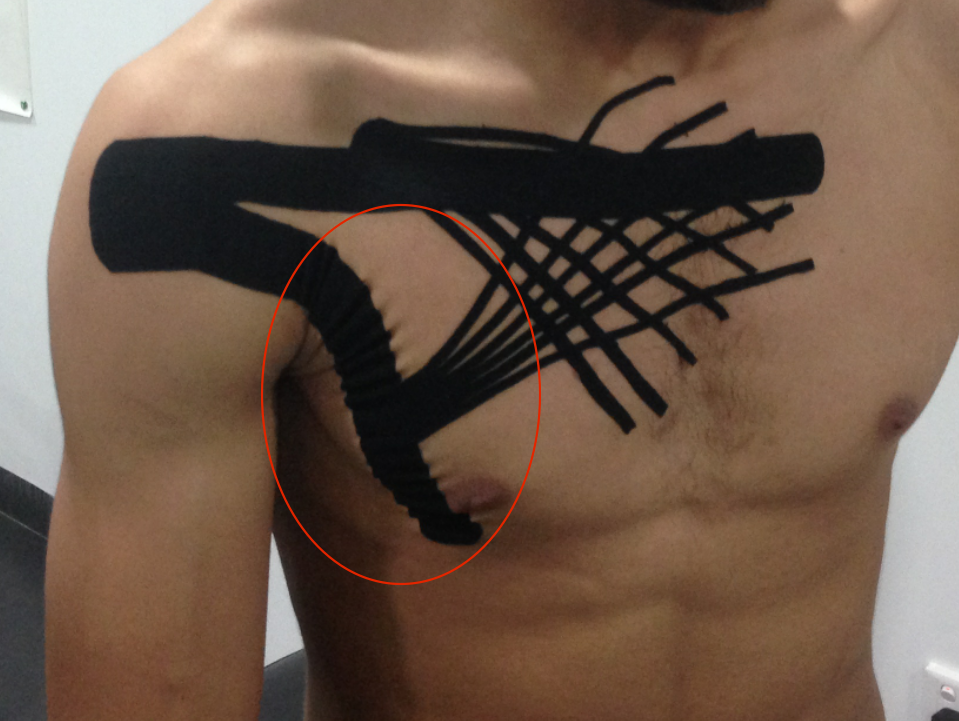 Evidence of convolutions in the lateral aspect of the pectoralis major muscle: pectoralis major inhibition application combined with a lymphatic correction