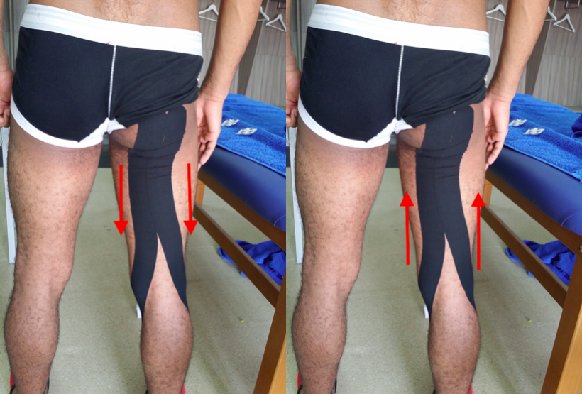 Hamstring facilitation (left) and inhibition (right) applications: the arrows show the direction in which the tape was applied