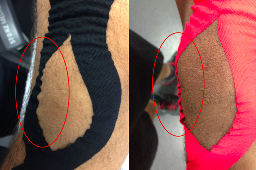 Kinesio Tex Tape (black) and other brand (pink): notice the different effect and adhesion properties, Kinesio Tex Tape created convolutions on the skin while the other tape was not able to stick properly to the skin, decreasing its capability to stimulate skin's receptors