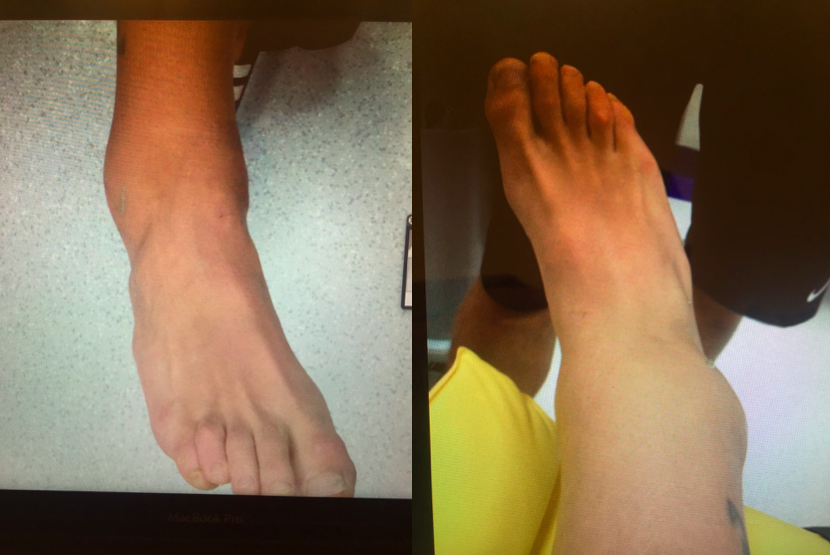 Hugo Viana's foot after the injury