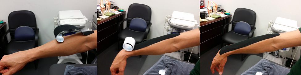 parts of the kinesio taping application