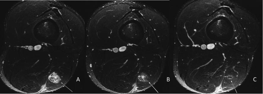 MRI of a moderate-grade strain of biceps femoris in professional football player