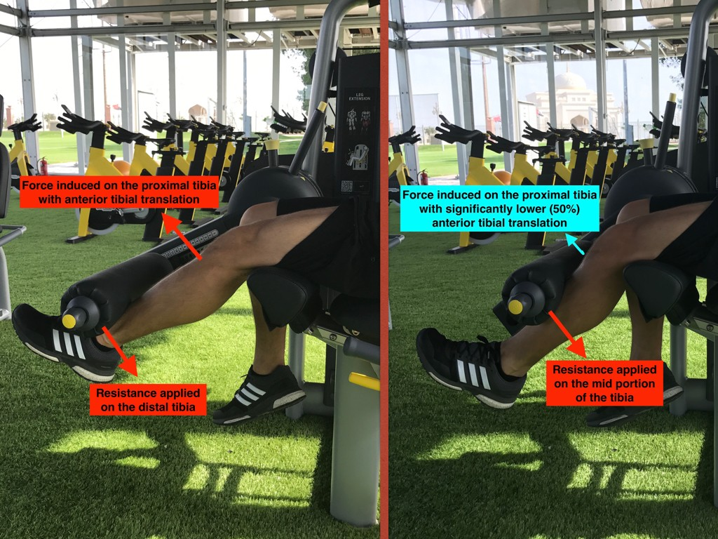 Implication of the distal load on the tibia