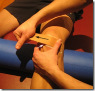 McConnell taping for patellofemoral pain syndrome